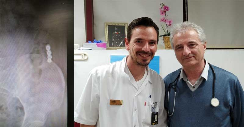 """מימין: גבי לב טולב וד""""ר טמז מץ, שיניים בקיבה. צילום באדיבות קופ""""ח מכבי"""