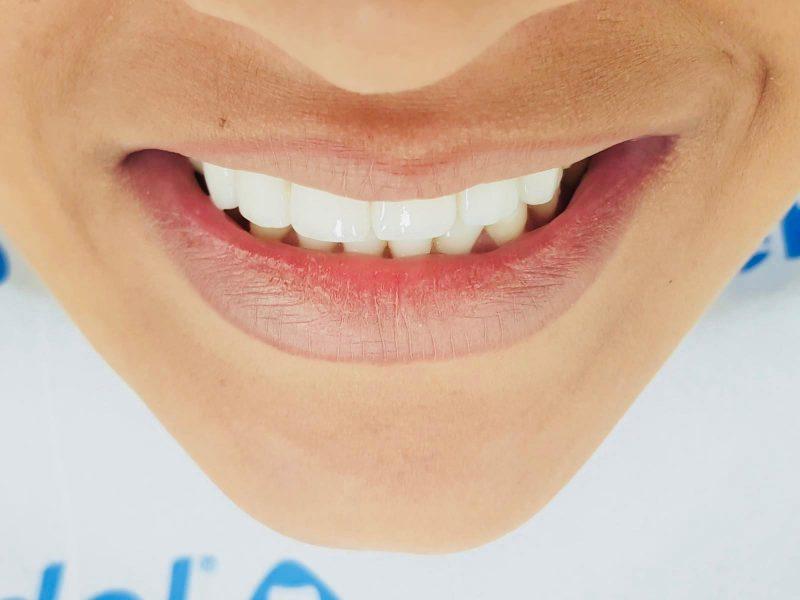 הלבנת שיניים בפתח תקווה. צילום: מאור ניב