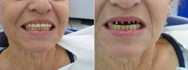 """השתלת שיניים - לפני ואחרי (צילום: יח""""צ דנטל קליניק)"""