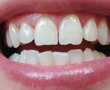 הלבנת שיניים. צילום: מאור ניב