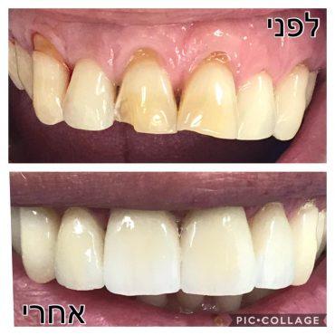 ציפויי שיניים, ניתן לשחזר את השיניים באופן מושלם. צילום: מאור ניב