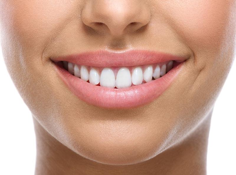 השתלת שיניים בפתח תקווה. צילום: shutterstock