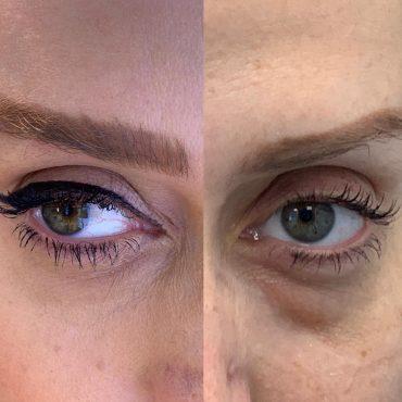 מיצוק העור באמצעות פטנט ייחודי. באדיבות קרן ליאן