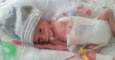 דנה בני נולד 1.325 קילו שבוע 29 בשנת 2014 - שליו