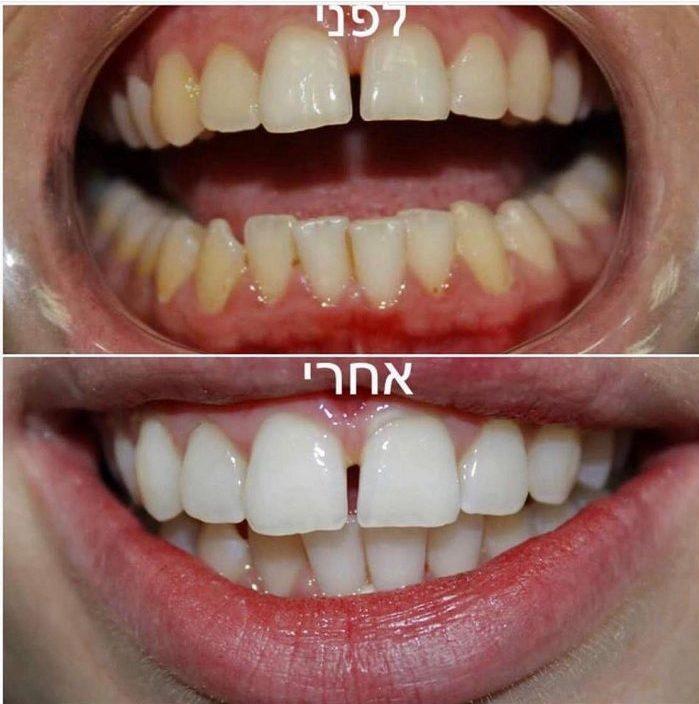 """לפני / אחרי (צילום: מרפאת ד""""ר סייף)"""