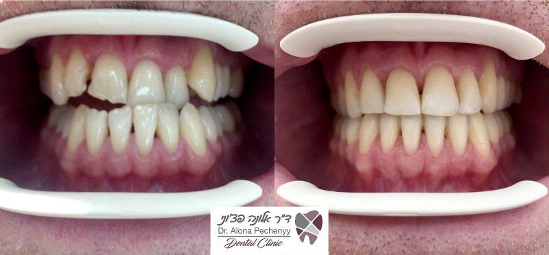 משמאל לימין: יישור שיניים לפני ואחרי (צילום: דנטל קליניק)